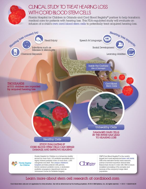 Cord Blood Hearing Loss Trial Infographic